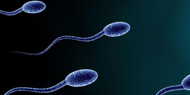 Сперматозоидыизображеные на рисунке
