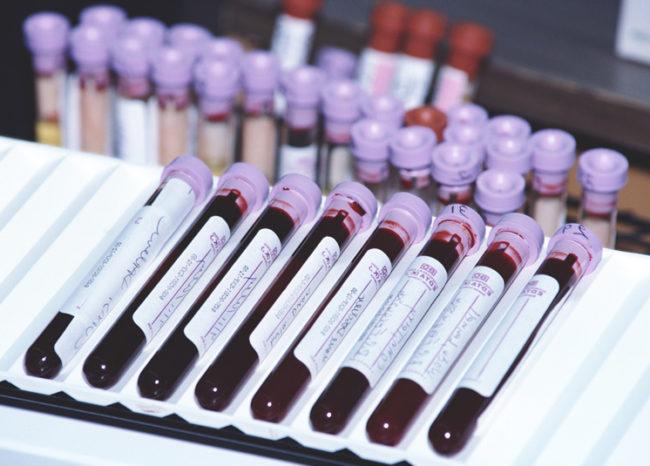 Анализ крови на гормоны в прозрачных колбах
