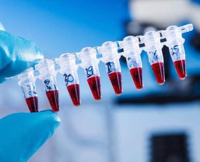 Анализ крови на исследование торч инфекций