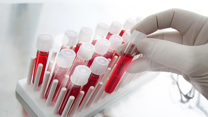 Сдача крови при планировании беременности
