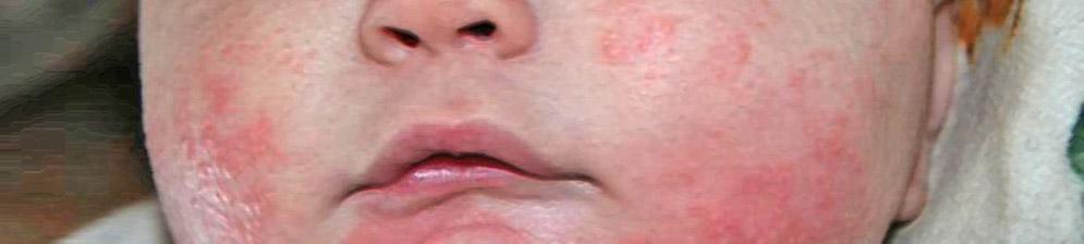Аллергия на лице у новорождённого