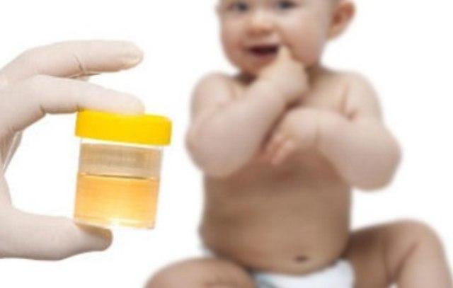 Баночка с анализом мочи новорождённого ребёнка