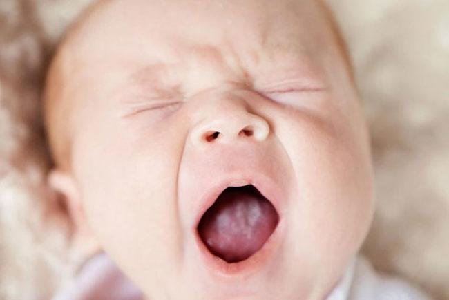 Белый налёт на языке новорождённого после грудного вскармливания