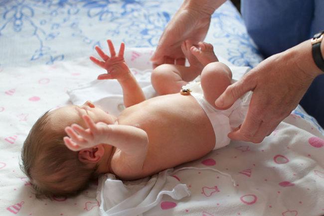 Осмотр подгузника у новорождённого