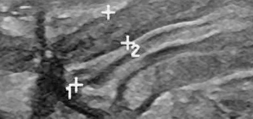 Пилороспазм у новорождённого на снимке УЗИ