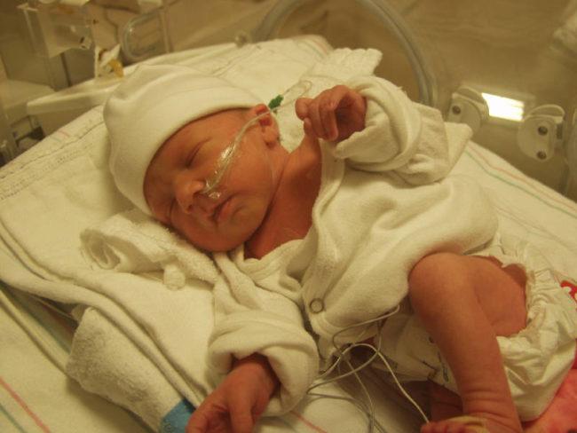 Новорождённый после операции