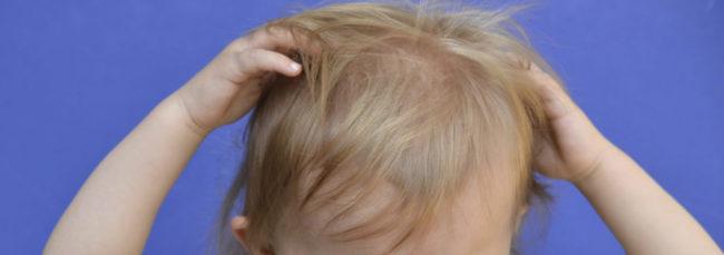 Ребёнок чешет голову при вшах и гнидах