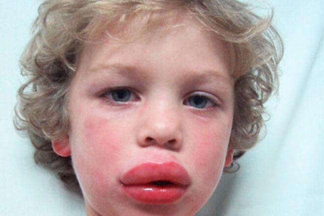 На белом фоне маленький светловолосый мальчик с опухшими губами при отёке Квинке