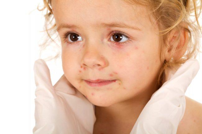 На белом фоне светловолосая маленькая девочка с карими глазами и покраснением на лице