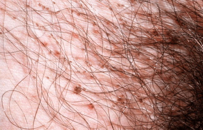 Воспаление кожного покрова при наличии гнид на коже