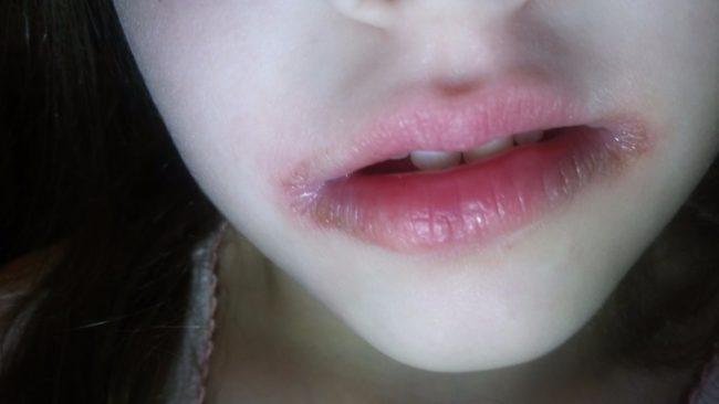 Эрозия на губах при заедах усиливается у ребёнка девочка