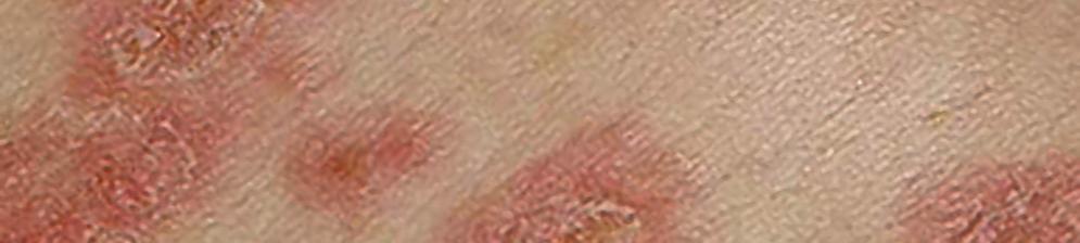 Как лечить розовый лишай у человека в домашних условиях быстро